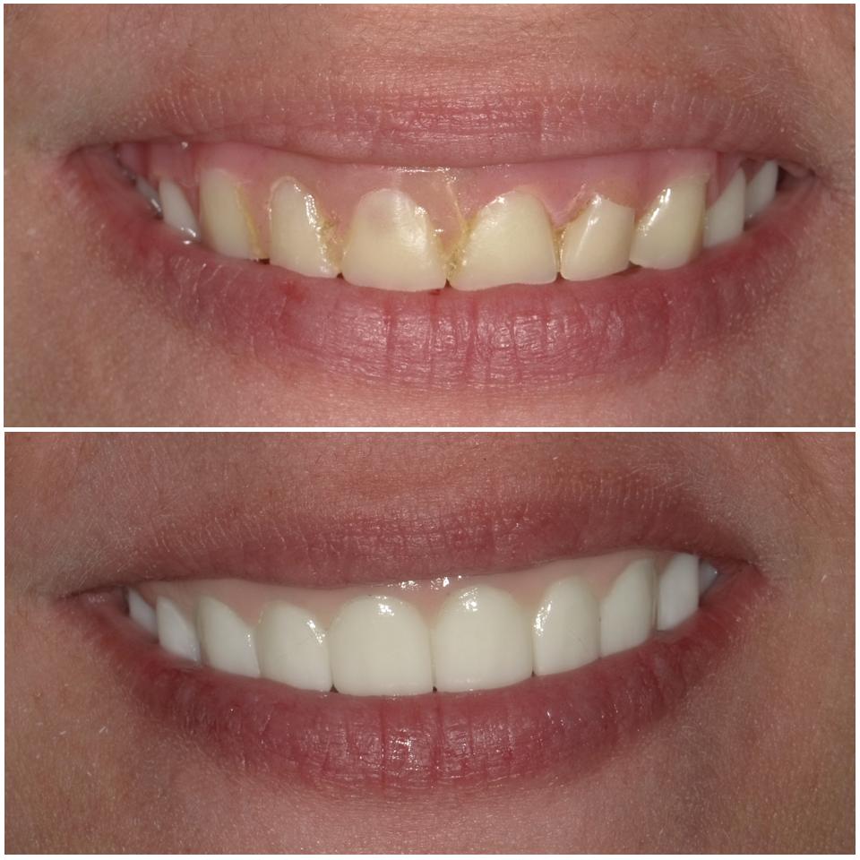 mini dental implants by dr  charles hawkins zanesville