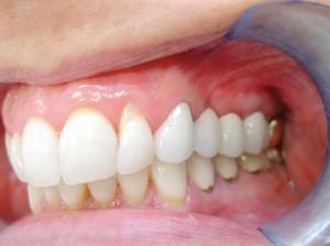 maryland-mini-implants-3